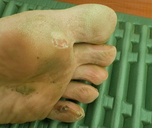 I'm excited to see what my little toe looks like when it has shed it's skin.